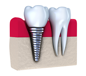 Dental Implants Ponte Vedra Fl | Dentist